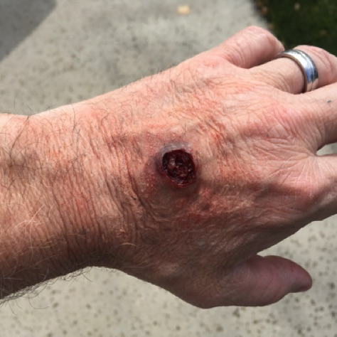 Prosthetic Wound Bullet Hole